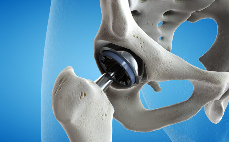 What is a total hip replacement? Know everything about it