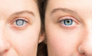 treatment of cataract by explains best eye specialist in Delhi