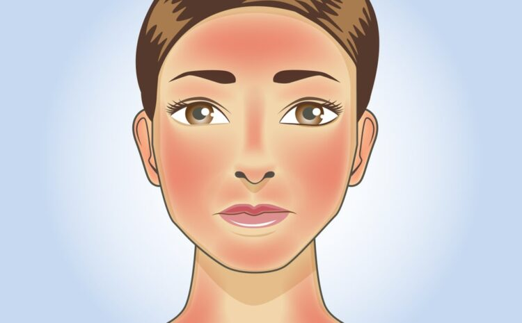 Skin redness, Cure, Sunburn & When to see a doctor